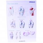 Plakát kolena